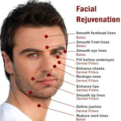 At Bucktown Dental Associate in Chicago IL, we emphasize care and expertise, while using the latest in dental technology . Botox Fillers, Dermal Fillers, Facial Esthetics, Facial Rejuvenation, Face Wrinkles, Dental, Chicago, Remedies, Campaign