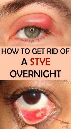 Eye Stye Remedies, Health Remedies, Home Remedies, Natural Remedies, Sty Remedies, Herbal Remedies, Get Rid Of Stye, Eye Infections, Social Networks