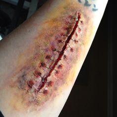 infected stitches by ScarahScrewdriveR.deviantart.com on @DeviantArt