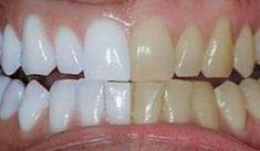 Ανακάτεψε 2 υλικά και τα έβαλε στα δόντια του. Το Αποτέλεσμα; ΔΕΝ ΥΠΑΡΧΕΙ! Θα το δοκιμάσω σίγουρα! – Fumara.gr