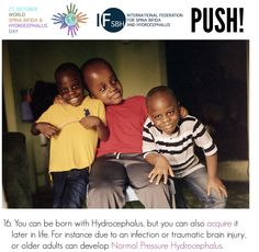 You can be born with Hydrocephalus, but you can also acquire it later in life. For instance due to an infection or traumatic brain injury, or older adults can develop Normal Pressure Hydrocephalus. Normal Pressure, Global Awareness, Traumatic Brain Injury, Did You Know, Knowing You, Life