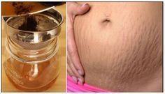 The answer lies mainly in the 'where' the fatty deposits lie in the body. Even if you only have a little bit of fat in your body, the fats are very near to the surface area of the skin, so the cellulite can be seen causing its usual lumps and bumps. Stretch Mark Remedies, Stretch Mark Removal, Home Remedies, Natural Remedies, Stretch Marks On Thighs, Lose 5 Pounds, Chemical Peel, Peeling, Natural Skin