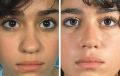 xnose: Rhinoplasty before & after