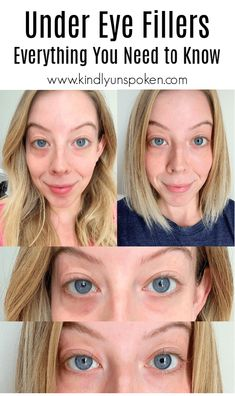 Under Eye Fillers – My Experience + Before & After, Curious about under eye fillers for dark circles? I'm sharing my experience of getting Juvederm Voluma cheek filler and Juvederm Volbella under eye fi. Under Eye Filler Cost, Under Eye Fillers, Cheek Fillers, Botox Fillers, Dermal Fillers, Fillers For Face, Botox Under Eyes, Under Eye Wrinkles, Botox Eyes