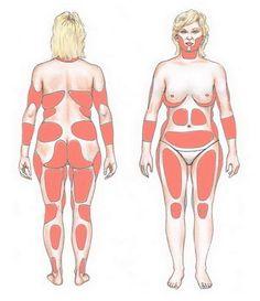 Τι κινδύνους κρύβει το περιττό βάρος μετά τα 40; Πώς να ξεφορτωθείτε το λίπος της ηλικίας και να μην παχύνετε ξανά;