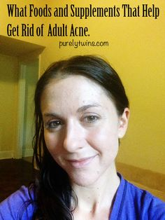 details on what foods and supplements help get rid of acne