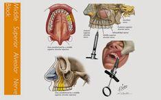 Overt Dental Hygienist Sayings Dental Hygiene School, Dental Humor, Dental Hygienist, Dental Assistant, Dental World, Dental Life, Dental Teeth, Dental Surgery, Dental Implants