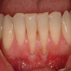 Natural Cures For Receding Gums - How To Cure Receding Gums Naturally | Search Herbal Remedy