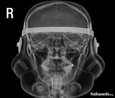 Stormtrooper skull x-ray | Radiology Case | Radiopaedia.org: Helmet stuck on head after attending a cosplay event.