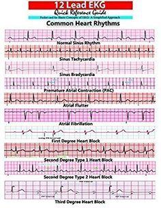EKG Pocket Card: APRN World: 9781941004067: Amazon.com: Books