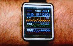 Samsung Simband Looks to Shake-up Wearable Health Tech
