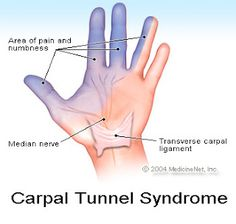 Median nerve entrapment) Carpal tunnel syndrome is pressure on the median nerve -- the nerve in the wrist that supplies feeling and movement to parts of the hand. Herbal Remedies, Health Remedies, Home Remedies, Health And Beauty Tips, Health Tips, Health And Wellness, Hand Therapy, Massage Therapy, Alternative Health
