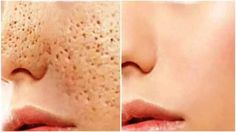 Pores are openings that allow the skin to breathe. Open pores are similar to small holes and this treatment can disappear them for good. Open Pores On Face, Big Pores, Natural Remedies For Migraines, Natural Health Remedies, Health And Fitness Tips, Health And Beauty, Natural Hair Care, Natural Hair Styles, Creme Anti Age