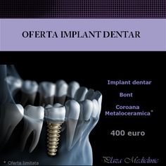 dental implant limited offer, dental implant best quality,dental implant best price