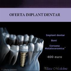 dental implant limited offer, dental implant best quality,dental implant best price