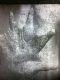 "Actual recovered photo of P.T. Barnum's ""The Real Mermaid"" before the evidence was destroyed by a fire that took place before the public appearance. This is the only known photo to exist. These are the hands."