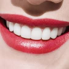 Beautiful teeth - top tips to help you avoid a dental disaster Best Teeth Whitening, Dental Care For Kids, Dental Photography, Veneers Teeth, Beautiful Teeth, Teeth Shape, Perfect Teeth, Smile Makeover, Make Up