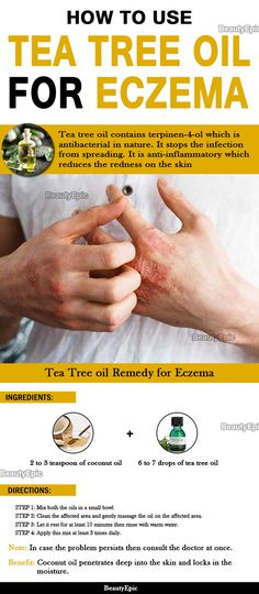 Best Ointment For Eczema. Itchy skin and eczema medication. On the list of various chronic skin disorders, eczema is among the most frequent. Tea Tree Oil Uses, Tea Tree Oil For Acne, All Natural Skin Care, Organic Skin Care, Natural Cure For Eczema, Natural Health, Home Remedies For Eczema, Herbal Remedies, Natural Remedies