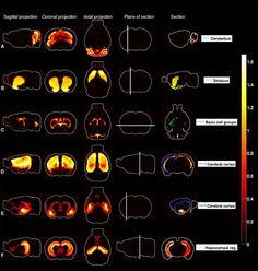 This image shows the different 'heat maps' in the brain, as mentioned in the article.
