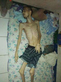 VENEZUELA | José Gabriel García. Procesado por robo de un teléfono celular en el Municipio Sotillo /Anzoátegui. Murió de hambre, el cuadro de desnutrición fue tan severo que quedó tieso sobre su colchoneta.