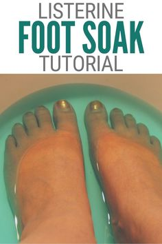 Have you heard about the Listerine Foot Soak to remove dead skin? I used it am sharing my results! Click here for the foot soak recipe. #thecraftyblogstalker #listerinefootsoak #drycrackedfeet #homeremedies Listerine Foot Soak, Foot Soak Recipe, Dry Cracked Feet, Cleaning Recipes, Health And Beauty Tips, Dead Skin, Feeling Great, Face And Body, Home Remedies