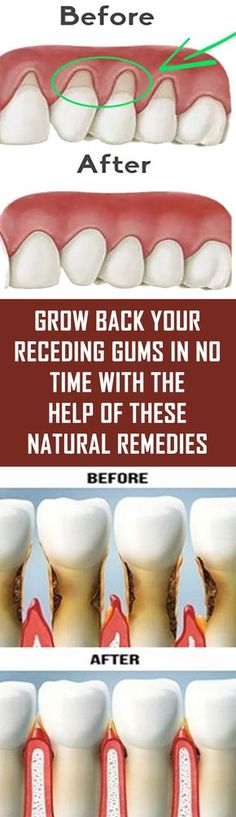 Holistic Health Remedies Grow Back Your Receding Gums In No Time With The Help Of These Natural Remedies Teeth Health, Healthy Teeth, Dental Health, Healthy Life, Healthy Protein, Dental Care, Natural Home Remedies, Natural Healing, Herbal Remedies