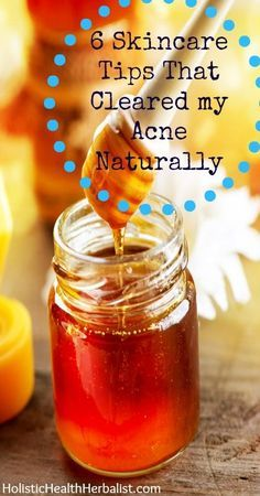 "Most effective acne treatment My 6 Step Routine for Acne Free Skin ""1. Honey Cleansing in the Morning 2. Rose Water Toner 3. Jojoba Oil Moisturizer 4. Cinnamon, Nutmeg, and Manuka Honey Spot Treatment/Scrub 5. Clay Mask 6. Oil Cleansing in the Evening"" 6 skincare tips that cleared my acne naturally"