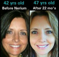 Amazing what Nerium can do!  www.yathink.nerium.com