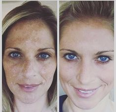 Jenna using REVERSE REGIMEN. I have a feeling this one will be popular here in Australia. The sun here can be harsh. REVERSE helps to even out your skin texture and tone and eliminates the brown spots, melasma and hyper-pigmentation giving you a youthful, radiant and healthy looking skin! Jenna had tried various procedures before Rodan+Fields and nothing worked, she had lost hope until a friend introduced her to R+F products. It has been Lifechanging decision for her! These products are…