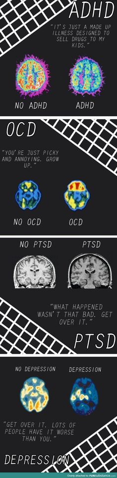 ADHD, OCD, PTSD and Depression are serious mental disorders and require therapy to learn how to cope