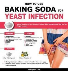 How to Use Baking Soda for Yeast Infection? Yeast infection is a common condition that mostly affects the genitals, mouth, throat & intestines. Here how you can use baking soda for yeast infection Bath For Yeast Infection, Yeast Infection Home Remedy, Yeast Infection Symptoms, Yeast Infection Treatment, Medicine For Yeast Infection, Baking Soda Yeast Infection, Signs Of Yeast Infection, Baking Soda Bath, Baking Soda Uses