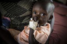 Nyakong (8 maanden oud) wordt behandeld voor ernstige ondervoeding bij een stabilisatie-centrum in Akobo, Zuid-Soedan.