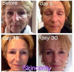 Fountain Of Youth, Wrinkled Skin, Rosacea, Skin Problems, Life Is Beautiful, Black And White, Day, Nu Skin, Face Masks