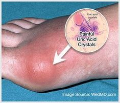 Gout is caused by having too much uric acid in your blood. Uric acid is made when your body breaks down chemicals called purines. Purines are found naturally in your body, and can also be found in certain foods. Home Remedies For Gout, Gout Remedies, Types Of Arthritis, Rheumatoid Arthritis, Arthritis Exercises, Natural Gout Treatment, Gout Flare Up, Gout Prevention, How To Cure Gout