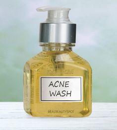 Face wash for acne prone or oily skin  1/2 cup Castile soap 1/4 cup apple cider vinegar 10 drops tea tree oil