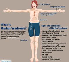 What is Marfan Syndrome?