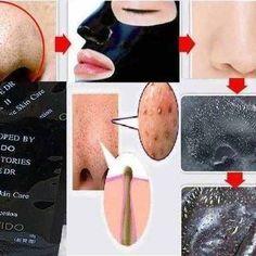 natural skin whitening tips for oily skin Pimples On Buttocks, Pimples On Chin, Pimples On Forehead, Pimples Under The Skin, Tips For Oily Skin, Cleanser For Oily Skin, Skin Care Tips, Natural Skin Whitening, Skin Lightening Cream