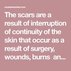 The scars are a result of interruption of continuity of the skin that occur as a result of surgery, wounds, burns and usually are a permanent damage. The presence of scars on the skin everyone tolerates differently, for some are meaningless, but for some represent an aesthetic problem and requires a million ways and treatments …