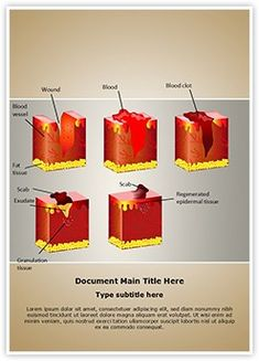 Dermatology Wound Healing MS Word Template is one of the best MS Word Templates by EditableTemplates.com. #EditableTemplates #Illustration #Fiber #Raster #Wound #Plaster #Chart #Dermatologist #Cell #Anatomical #Fat #Cross #Blood #Diagram #Dermis #Patch #Drawing #Treat #Section #Aid #Health #Disease