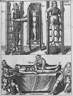 [Réduction des luxations et fractures du fémur] - Armamentarium chirurgicum - Appareils et matériels. Médecins et malades. Jambes - 00259. Roman Catholic History, Scariest Monsters, Medical Drawings, Maleficarum, Fantasy Art Landscapes, Occult Art, Vintage Medical, Arte Horror, Medical Illustration