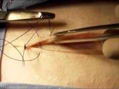 Tipos de Sutura - Pontos Cirúrgicos - YouTube