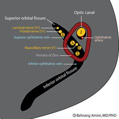 The Annulus of Zinn, also known as annulus tendineus communis, is a structure in the posterior part of the orbit where the periorbita thickens around the optic canal and the central part of the superior orbital fissure. Four rectus muscles attach to the common tendinous ring. The structure got its name from Johann Gottfried Zinn, a Franconian professor who was an anatomist and botanist. He made important contributions to the anatomy of the eye throughout his short lifetime and wrote a book.