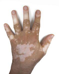 Essential Oils For Vitiligo: When The Natural Skin Pigment Calls It A Day! What Is Vitiligo, Vitiligo Skin, Vitiligo Treatment, Skin Grafting, Skin Burns, Essential Oils For Skin, Medical Prescription, Natural Treatments, Aromatherapy