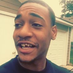 @theworldshero chipped his tooth once again-video