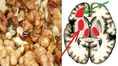 Poruchy pamäte, hučanie v ušiach, vysoký krvný tlak to sú príznaky, ktoré vám bijú na poplach. Spravte si prevenciu proti takýmto chorobám - Báječné zdravie