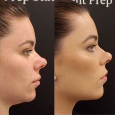 Fiori Institute offers you the opportunity to be your best self through cosmetic and plastic surgery procedures. Chin Filler, Face Profile, Plastic Surgery Procedures, Dermal Fillers, Jawline, Weight Loss Transformation, Contour, Hair Beauty, Skin Care