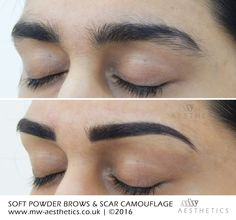 semi permanent eyebrows and scar camouflage