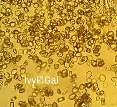 Body Fluid, Uric Acid, Crystals