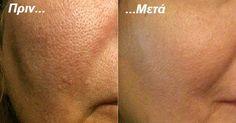 Διευρυμένοι, ανοικτοί πόροι στο πρόσωπο μπορεί να κάνουν το δέρμα σας να φαίνεται γερασμένο και να έχει μη υγιή όψη,..