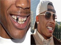 #Nelly #CosmeticDentistry #BeforeandAfter http://www.baselinedental.com